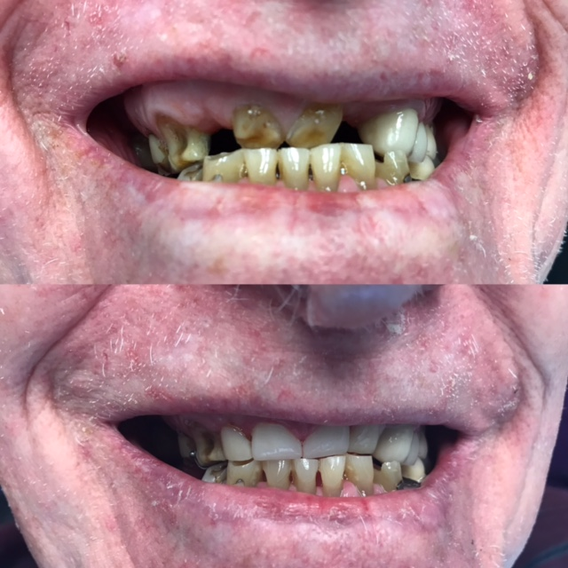 Town Center Dental of Lagrange Before / After smile gallery photo
