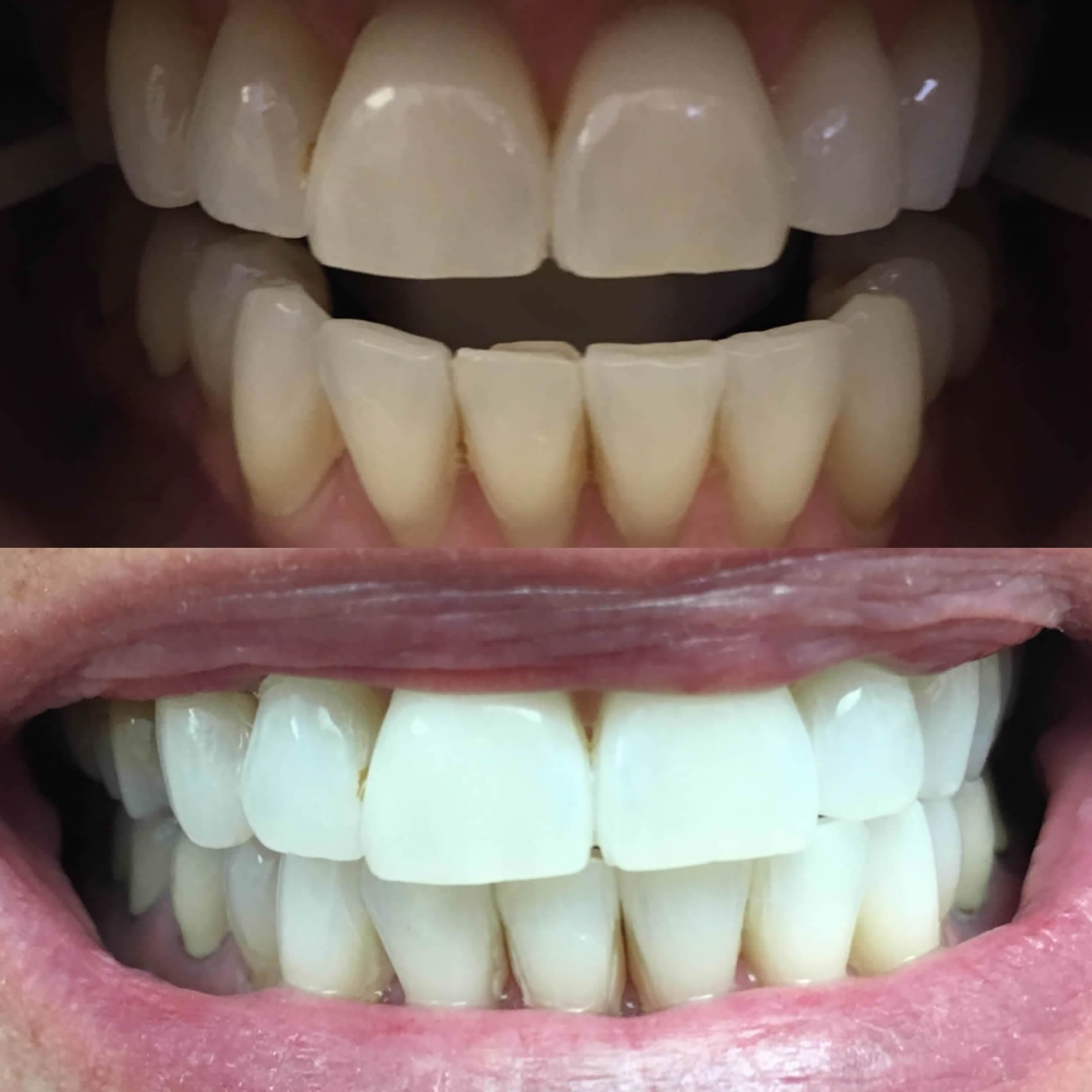 Town Center Dental of Before / After Whitening gallery photo